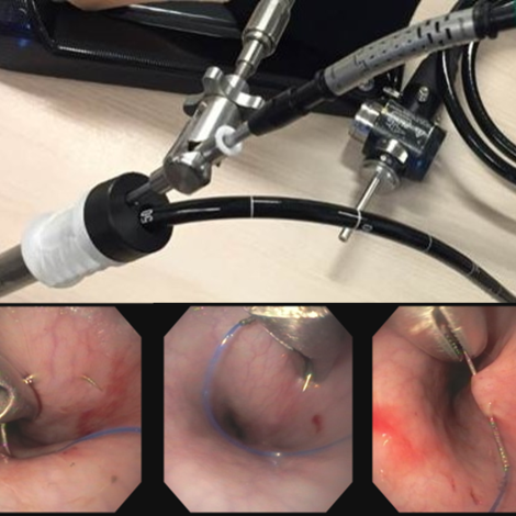 Endoscopic suturing